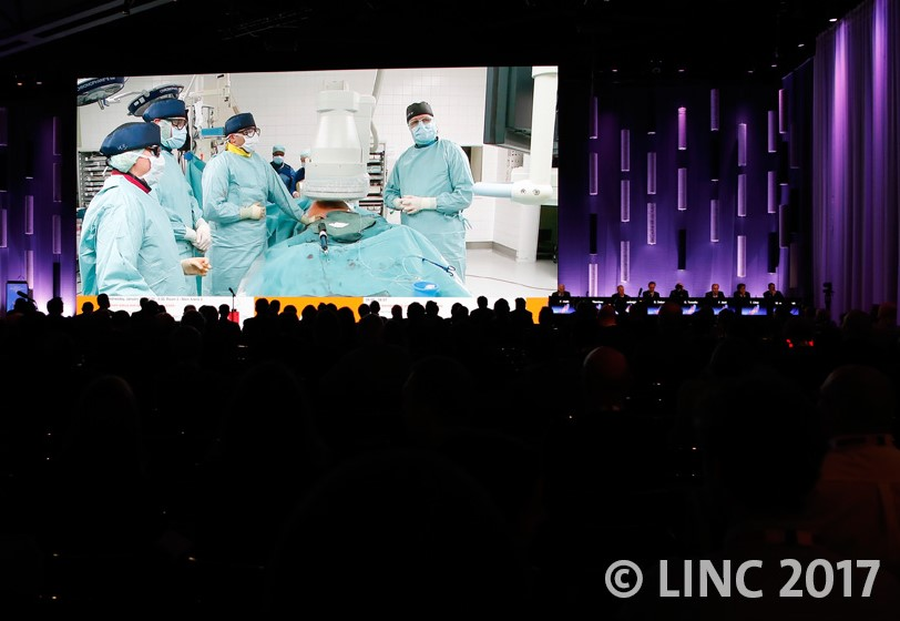 Live ενδαγγειακό χειρουργείο Θεοδόσιος Μπίσδας MD, PhD Αν.Καθηγητής Αγγειοχειρουργικής