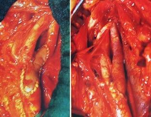 Καρωτιδική νόσος